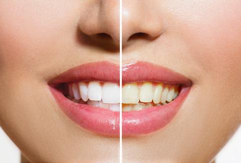 'Roomful of Teeth' By Caroline Shaw